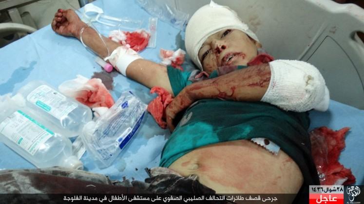 Napad na dječiju bolnicu u Falludzi