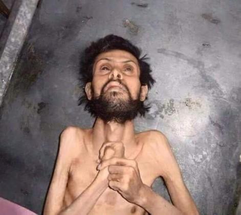 Civili umiru od gladi usljed opsade šiitsko-režimskih snaga