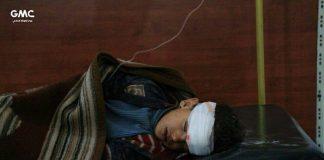 Istocna Guta dijete ranjeno u teroristickom napadu